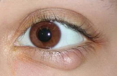 Фото воспалительного заболевания глаз – ячмень