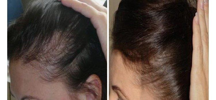 Это весьма эффективный способ лечения волос