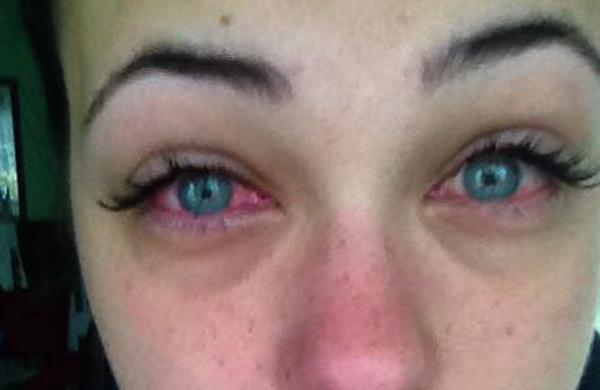Раздражение глаз от нарощенных ресниц