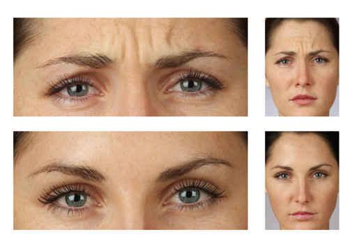 Значение морщины между бровями может варьироваться, в зависимости от того, какие эмоции вы показываете чаще