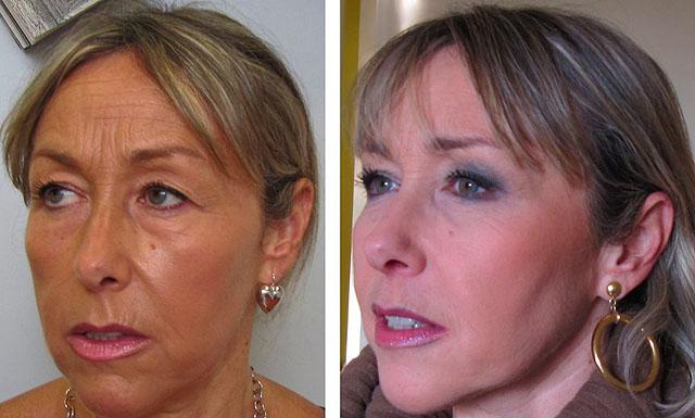 фото до и после липофилинга щек и скул