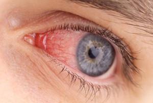 Конъюктивит – следствие аллергии на компоненты продукции.
