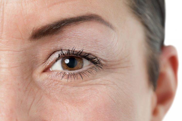 Как убрать гусиные лапки вокруг глаз