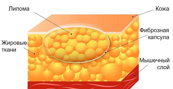 Что такое жировик?
