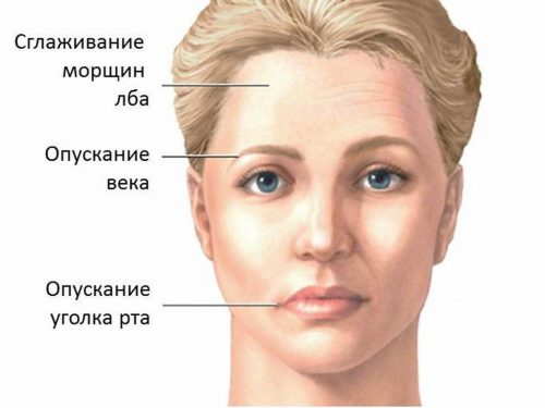 причины появления ассиметрии лица