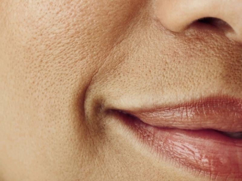 Как убрать расширенные поры на лице самостоятельно