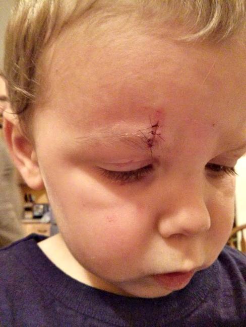 Что делать, если ребенок рассек бровь?