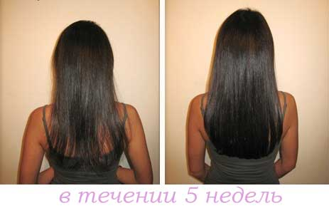 Никотиновая кислота для волос - фото до и после