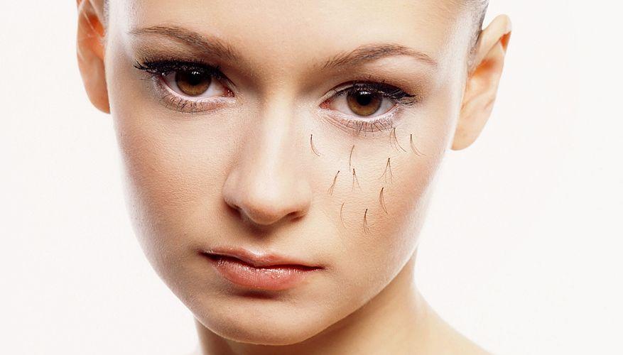 Выпадение ресниц: причины проблемы и лечение