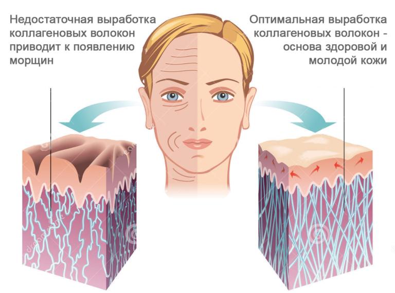 ТОП-13 лучших коллагеновых масок для лица
