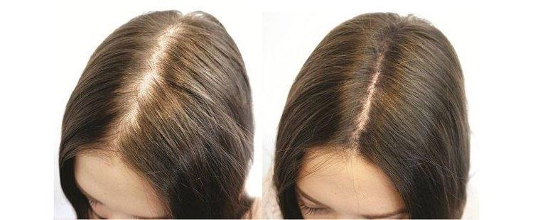 Подходит для слабых и редких волос