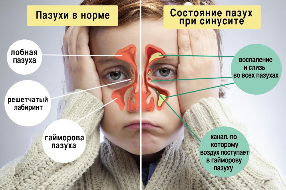 Фото-инструкция, наглядно демонстрирующая изменения в пазухах при синусите