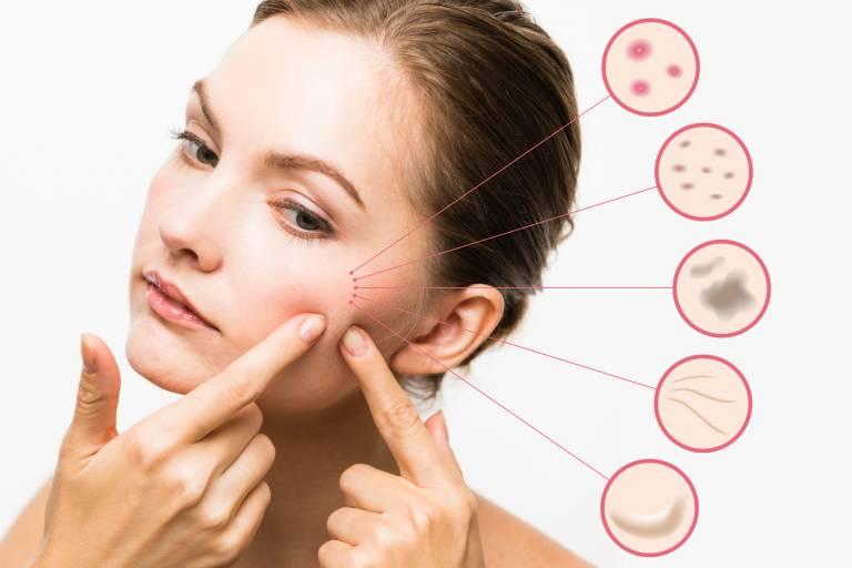 Основные проблемы кожи