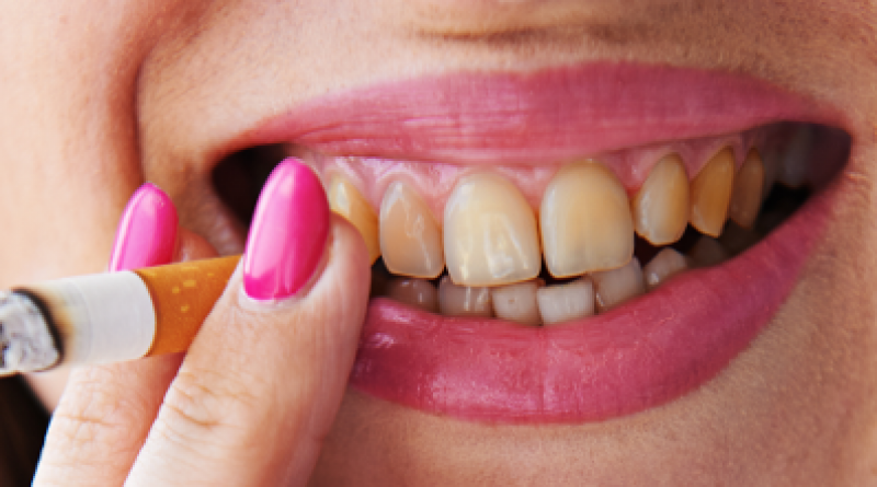 Ваша улыбка: зубные имплантаты — эффективное решение при потере зубов!