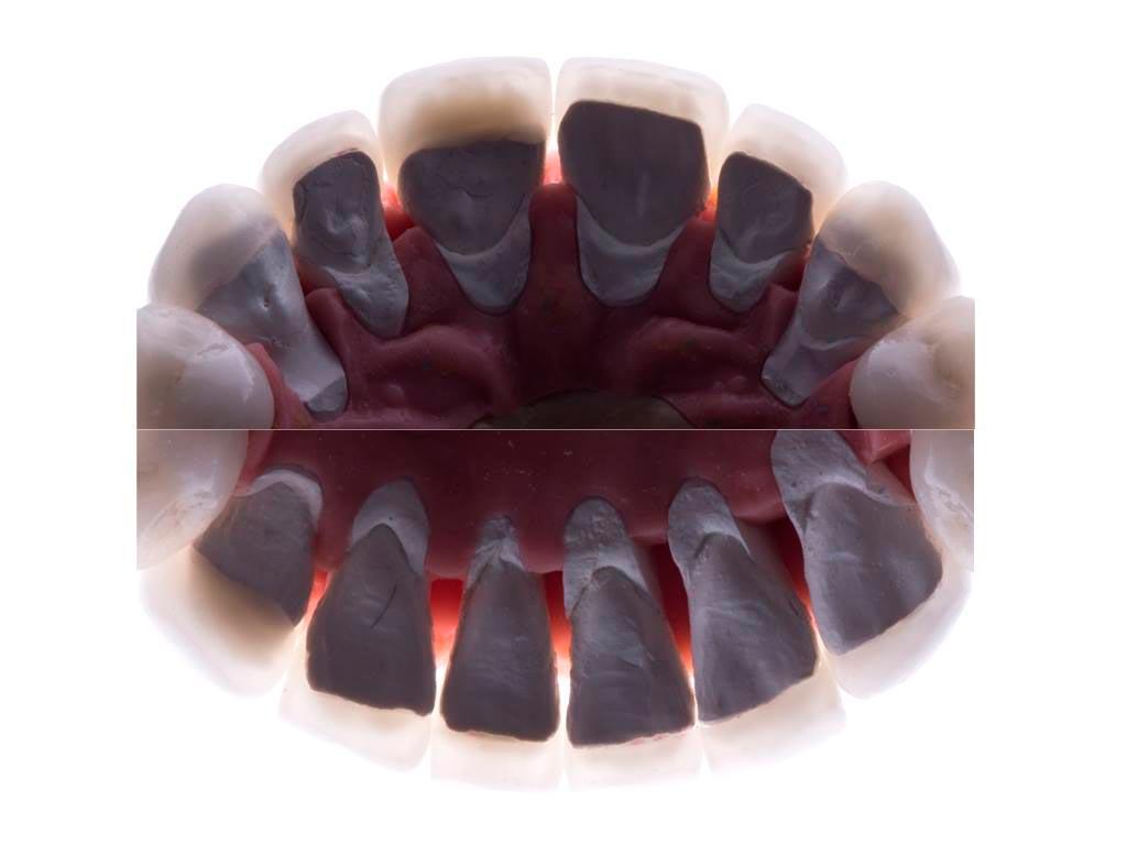 Планирование и изготовление зубных коронок и виниров