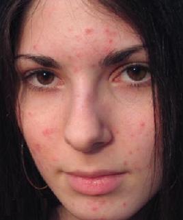 Причины возникновения проблем с кожей