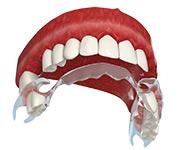 Съемное протезирование при потере зубов