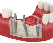 Одноэтапная имплантация при потере зубов