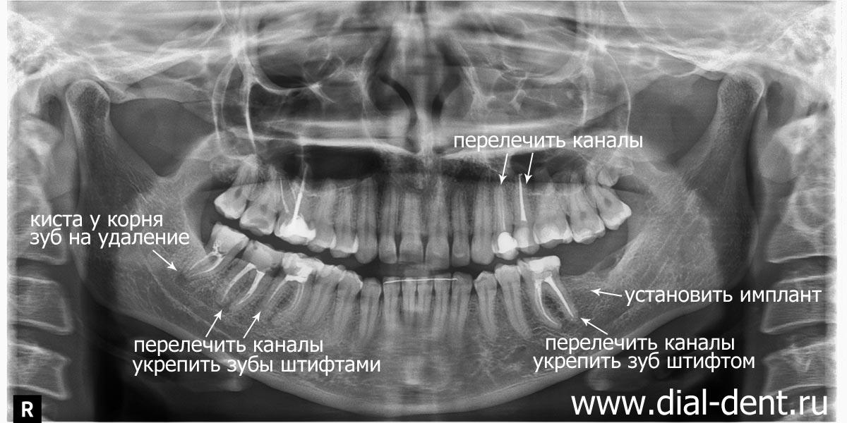 Начало протезирования зубов – составление плана лечения