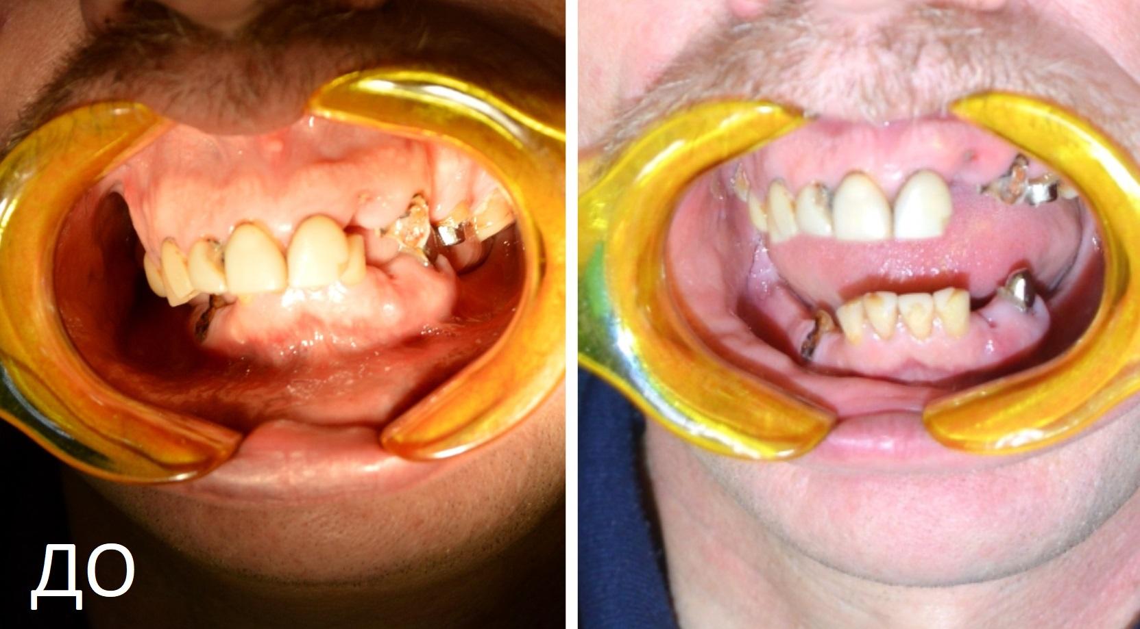 Причина, по которой он к нам обратился — потеря основной части зубов