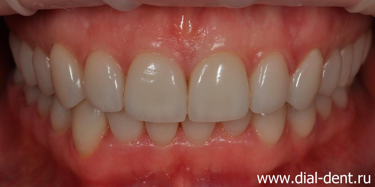 вид зубов после протезирования керамическими коронками и винирами