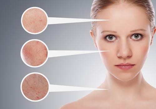 Проблемная кожа: правила ухода