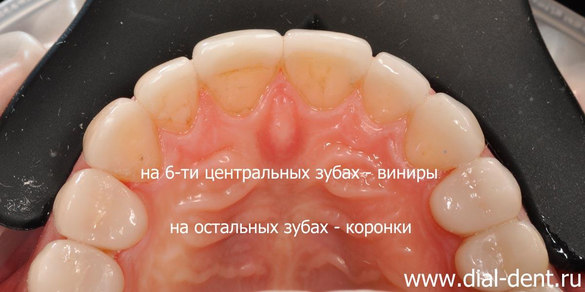 Протезирование зубов керамикой