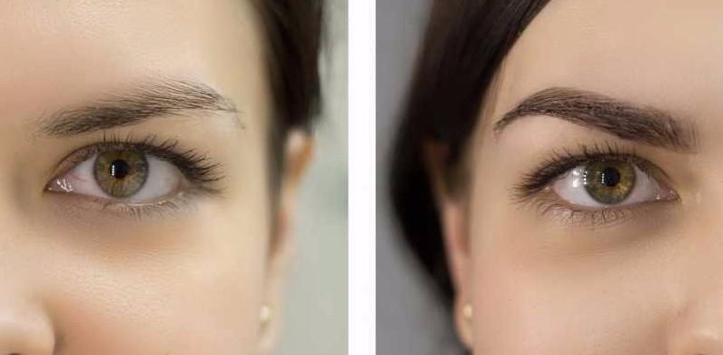 Биоламинирование бровейпозволяет укоротить непослушные волоски, сделать их визуально гуще и темнее