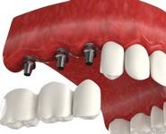 Двухэтапная имплантация при потере зубов
