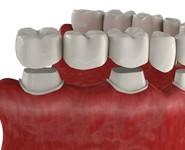 Зубные коронки и мосты при потере зубов